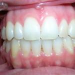1_After_Teeth