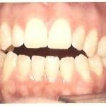 1_Before_Teeth