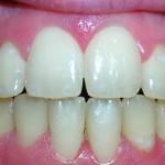2_After_Teeth