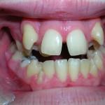 2_Before_Teeth