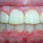 3_After_Teeth