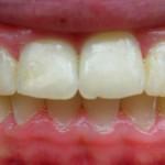4_After_Teeth