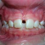 4_Before_Teeth