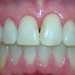 5_After_Teeth