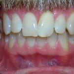 5_Before_Teeth