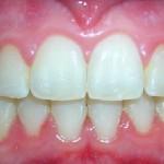 6_After_Teeth