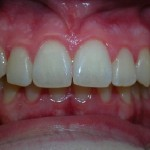 6_Before_Teeth